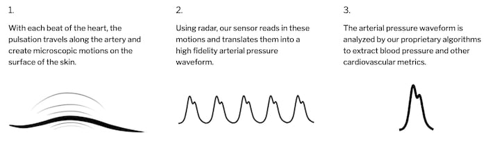 Contactless analysis of blood pressure circulation using 60 GHz CW radar.