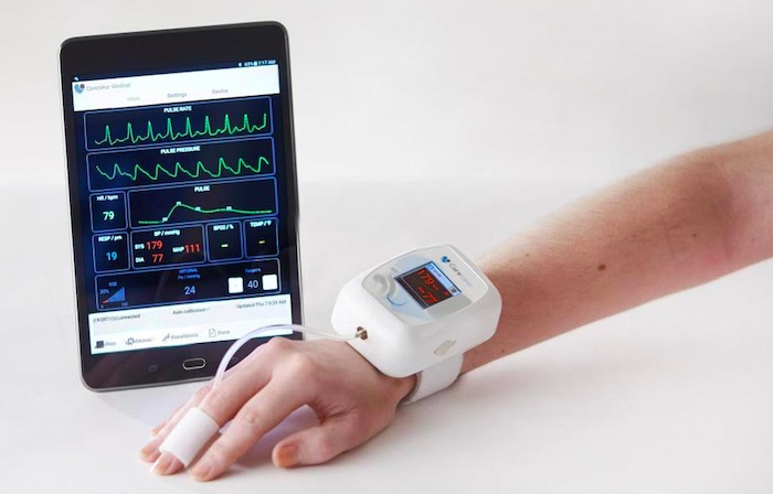 Example of a wearable vital sign monitor