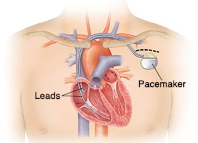 Graphic of a pacemaker in the human body.