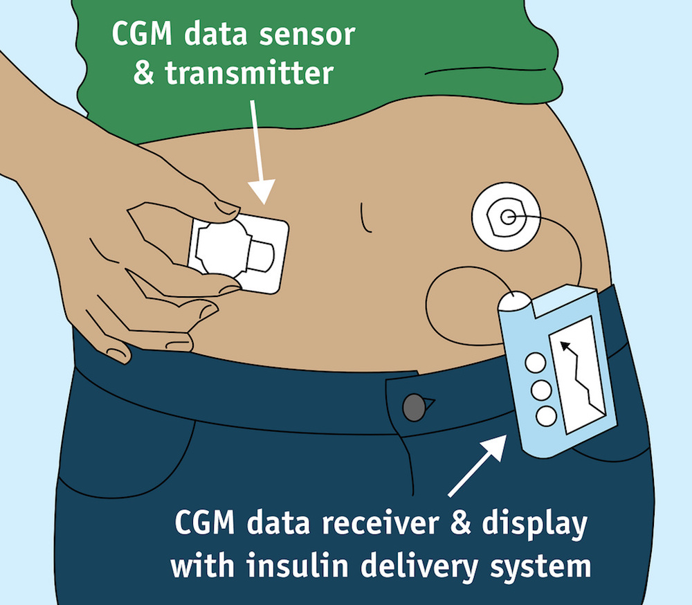 The Latest In Medical Tech For Diabetes Care A Non