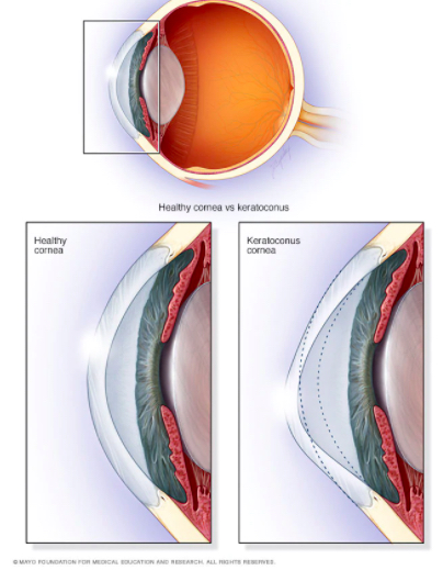 Patients with keratoconus experience a thinning cornea that eventually protrudes into a cone shape