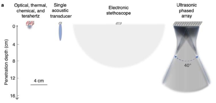 Ultrasonic phased arrays